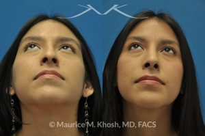 Photo of a patient before and after a procedure. Rhinoplasty for hump and tip - This young lady with Hispanic ethnicity was interested in addressing a large hump in her nose, droopy nasal tip, and wide nostrils. Rhinoplasty was performed through the open approach.