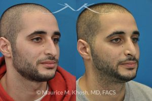 Photo of a patient before and after a procedure. Droopy tip rhinoplasty - This gentleman with Middle Eastern ethnicity had a long nose with droopy tip and a nasal hump. Rhinoplasty was performed via the open approach.