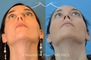 Photo of a patient before and after a procedure. Small hump nose job - This patient was interested in rhinoplasty to straighten the hump on the bridge of her nose. Surgery was performed through the closed rhinoplasty approach.
