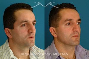 Photo of a patient before and after a procedure. Large hump with droopy tip - his gentleman was interested in a nose job to address a very large nose hump, and extremely droopy tip. This rhinoplasty was executed via the open approach.