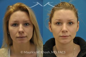 New York NY Chin Implants Doctor