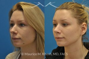 Photo of a patient before and after a procedure. Rhinoplasty and chin implant