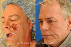 Photo of a patient before and after a procedure. Cheek reconstruction