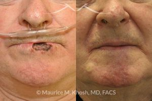 Photo of a patient before and after a procedure. Lip recnostruction for Mohs cancer defect