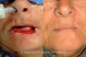 Photo of a patient before and after a procedure. Lip reconstruciton with Abbe Estelander flap