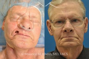 Photo of a patient before and after a procedure. Lip reconstruction