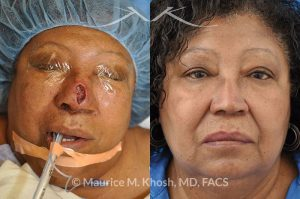 Photo of a patient before and after a procedure. Nasal reconstruction with bilateral midline advancement flaps