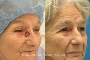 Photo of a patient before and after a procedure. Moh's skin cancer repair of nose