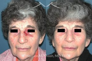 Photo of a patient before and after a procedure. Nose Moh's skin cancer repair