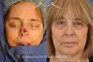 Photo of a patient before and after a procedure. Nose tip reconstruction Mohs skin cancer defect