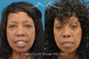 Photo of a patient before and after a procedure. This 55 year old African American lady was interested to addressing lower eyelid puffiness and sagging eyebrow. She underwent lower lid rejuvenation through a trans-conjunctival (inside the eyelid) blepharoplasty and a temporal brow lift.