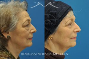 Photo of a patient before and after a procedure. 66 year old lady with troublesome puffiness of the lower eyelids and saggy upper eyelids. She was successfully treated with upper blepharoplasty and trans-conjunctival (through the inside of eyelid) lower blepharoplasty. Notice the substantial rejuvenated appearance of the entire face resulting from her eyelid lift procedure.