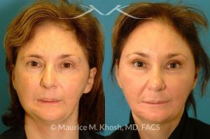 Photo of a patient before and after a procedure. Brow lift