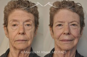 Photo of a patient before and after a procedure. Voluma filler