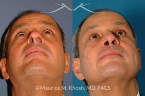 Photo of a patient before and after a procedure. Nasal valve repair septoplasty