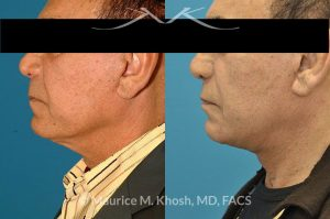 Photo of a patient before and after a procedure. Facelift - This 73 year old gentleman, with past facelift surgery, complained of central neck skin laxity and