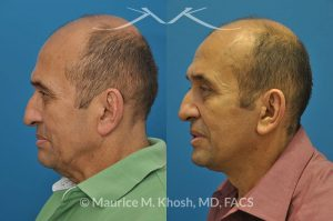 New York NY Plastic Surgeon for Men