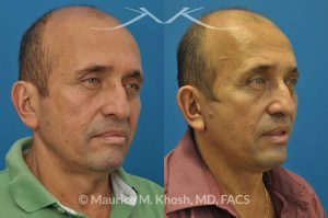 Photo of a patient before and after a procedure. Facelift, neck lift - 66 year old man who wanted tightening of neck skin and improvement in the jowls while maintaining a natural an un-operated look. A conservative SMAS facelift with simultaneous neck lift helped achieve his desired goals.