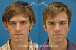 Photo of a patient before and after a procedure. Otoplasty