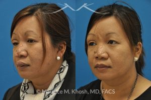 Photo of a patient before and after a procedure. Rhinoplasty for hemangioma - Reconstructive rhinoplasty in this lady was aimed at addressing nasal deformities which had developed from hemangiomas of the skin. An open rhinoplasty technique was utilized in this case.