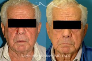 Photo of a patient before and after a procedure. Nose alar Moh's skin cancer reconstruction