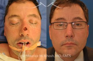 Photo of a patient before and after a procedure. Nose dorsum Moh's skin cancer reconstruction