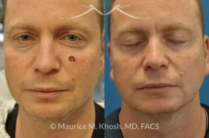 Photo of a patient before and after a procedure. Cheek reconstruction after Mohs skin cancer removal