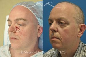 Photo of a patient before and after a procedure. Cheek reconsturction Mohs skin cancer defect