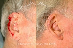Photo of a patient before and after a procedure. Ear reconstruction after Mohs skin cancer removal