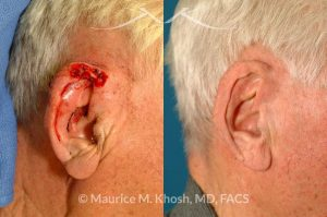 Photo of a patient before and after a procedure. Mohs defect repair of ear