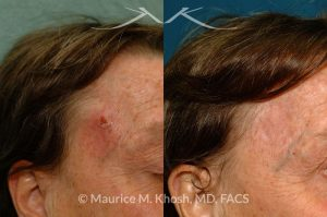 Photo of a patient before and after a procedure. Temple skin reconstruction with skin graft