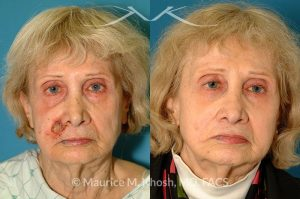 Photo of a patient before and after a procedure. Lip reconstruction for Mohs skin cancer defect