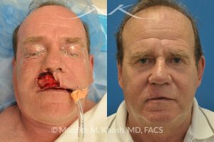 Photo of a patient before and after a procedure. Lip reconstructiton