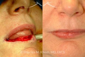 Photo of a patient before and after a procedure. Lip reconsturction with mucosa flap after Mohs cancer removal