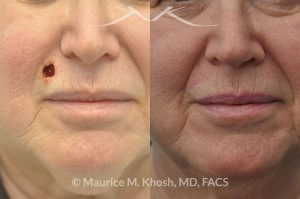 Photo of a patient before and after a procedure. Upper lip Mohs cancer defect repair