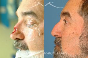 Photo of a patient before and after a procedure. Nose Mohs cancer reconstruction with forehead flap
