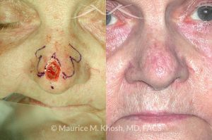 Photo of a patient before and after a procedure. Nose tip Mohs skin cancer reconstruction