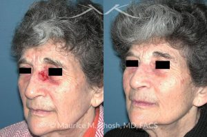 Photo of a patient before and after a procedure. Nose Mohs skin cancer repair