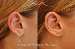 Photo of a patient before and after a procedure. Revision Otoplasty