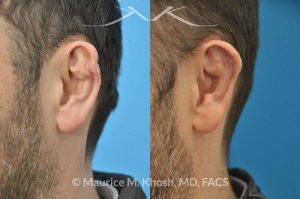 Photo of a patient before and after a procedure. Cauliflower Ear Deformity Repair