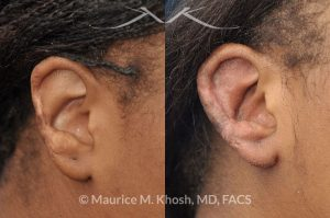 Photo of a patient before and after a procedure. Ear Reconstruction To Repair The Helical Rim After Traumatic-Injury