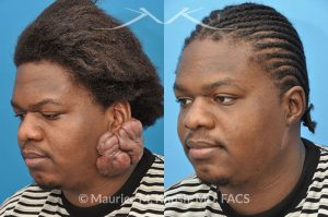 Photo of a patient before and after a procedure. Keloid Ear