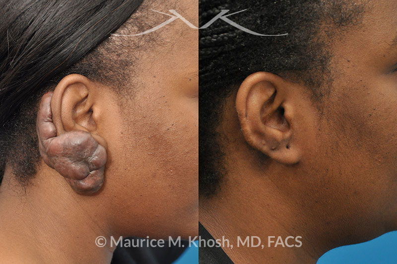 New York Facial Plastic Surgery Keloid Scar Reconstruction ...Earlobe Keloid Removal