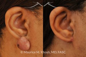 Photo of a patient before and after a procedure. Keloid Earlobe