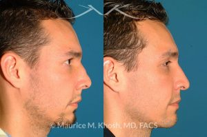Photo of a patient before and after a procedure. Nose Fracture