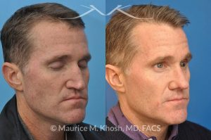 Photo of a patient before and after a procedure. This gentleman who had previously undergone rhinoplasty complained of droopy tip, nose obstruction, and asymmetric appearance of the tip. Revision rhinoplasty utilizing rib cartilage, performed through the open approach allowed restoration of the nasal tip symmetry, improved breathing, and normal tip position.