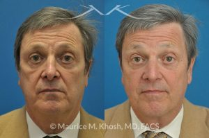Photo of a patient before and after a procedure. Previous rhinoplasty in this gentleman had caused nasal obstruction, pinched and retracted nostrils, and excess columellar show. Revision open approach rhinoplasty with septum cartilage graft allowed restoration of breathing, and creation of a natural and harmonious appearing nose.