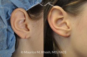 Photo of a patient before and after a procedure. Torn Earlobe Repair Photo Gallery