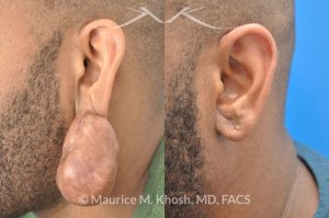 Photo of a patient before and after a procedure. Large keloid of ear