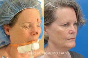 Photo of a patient before and after a procedure. Moh's skin cancer reconstruction